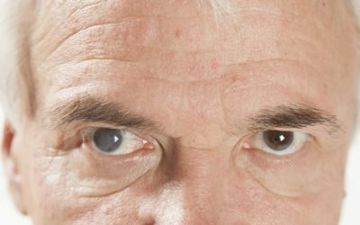 Want to Know More About Cataract Treatments? Read On!